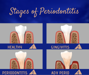 _stages of perio